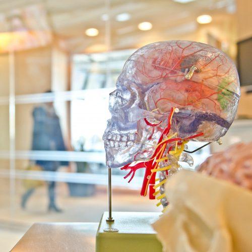 Model of a brain in gallery